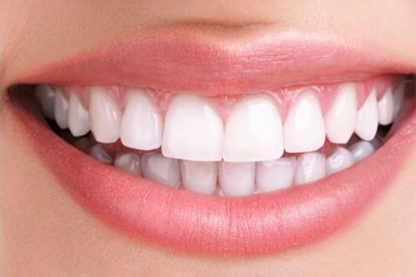 After teeth whitening nelson bay