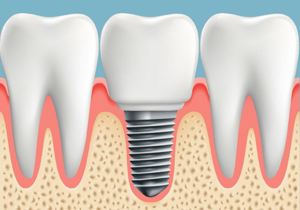 Dental Implants Nelson Bay