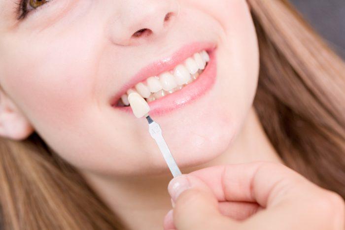 Porcelain Veneer Nelson Bay Dentist